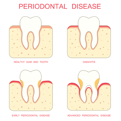 periodontal erie co