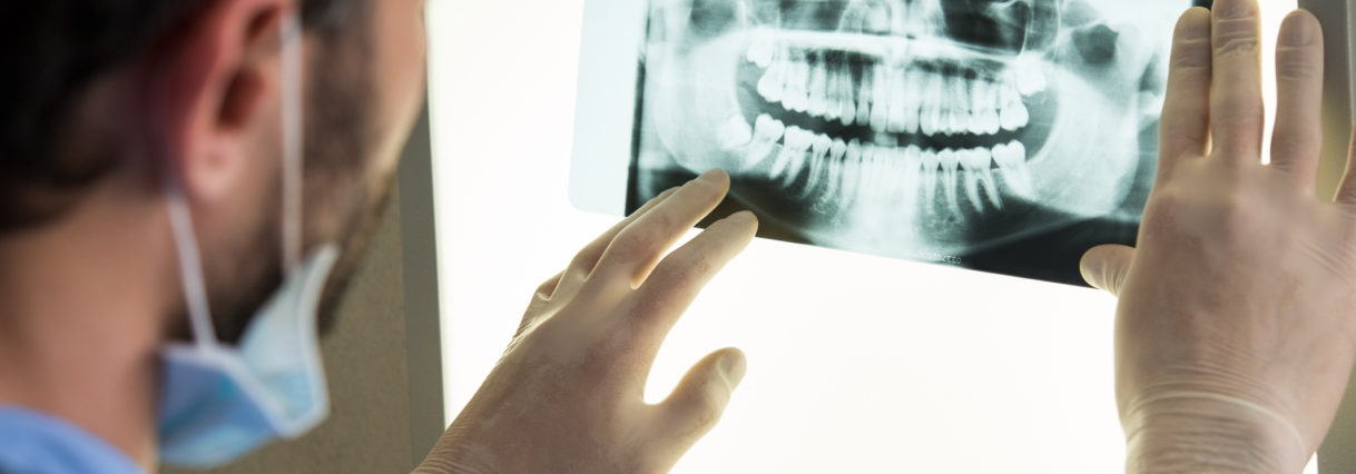 Understanding the Different Types of Gum Disease
