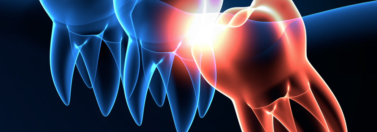 Wisdom Tooth Removal May Improve Your Ability to Taste